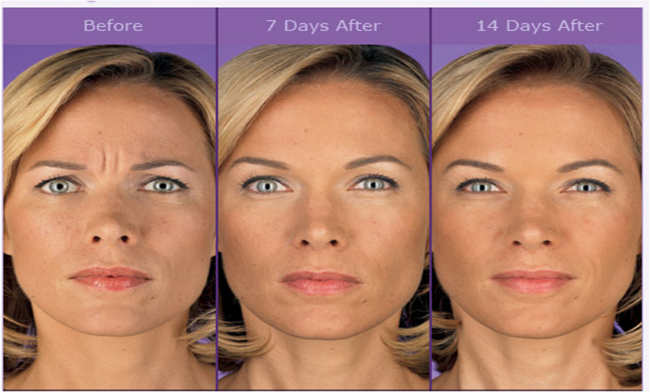 Alaska Oral & Facial Surgery Center - BOTOX® Cosmetic